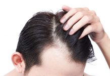 What Are The Causes of Hair Transplant Failure And How To Avoid Them?