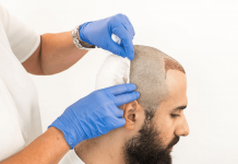FUT+FUE+BHT Hair Transplant Procedure: Explain The Technique And Its Benefits
